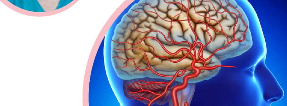 საძილე არტერიების ქირურგიული მკურნალობის როლი იშემიური ინსულტის პრევენციაში